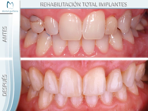 Rehabilitación Total Implantes